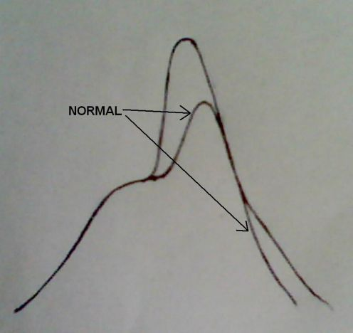 Irregularities In Indicator Diagram Marine Engineering